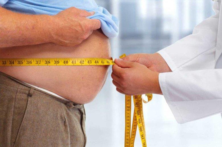 Cirugia de la obesidad