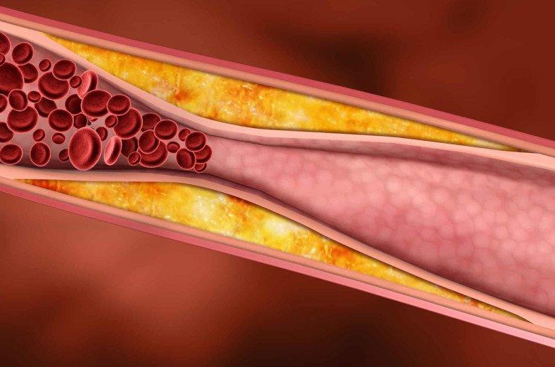 Colesterol. Mantequilla y margerina