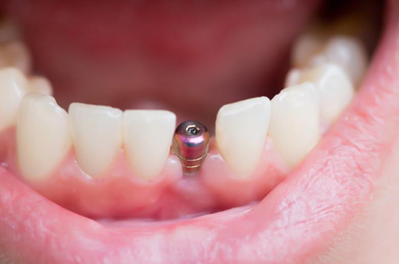 Implantes dentales guiado