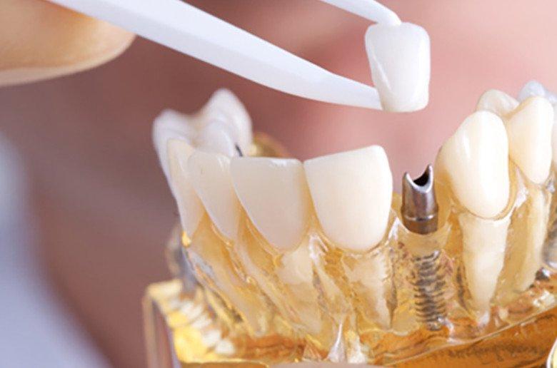Implantes dentales. Todo lo que necesitas saber